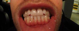 zadrutowani aparat ortodontyczny pogrubianie biotypu