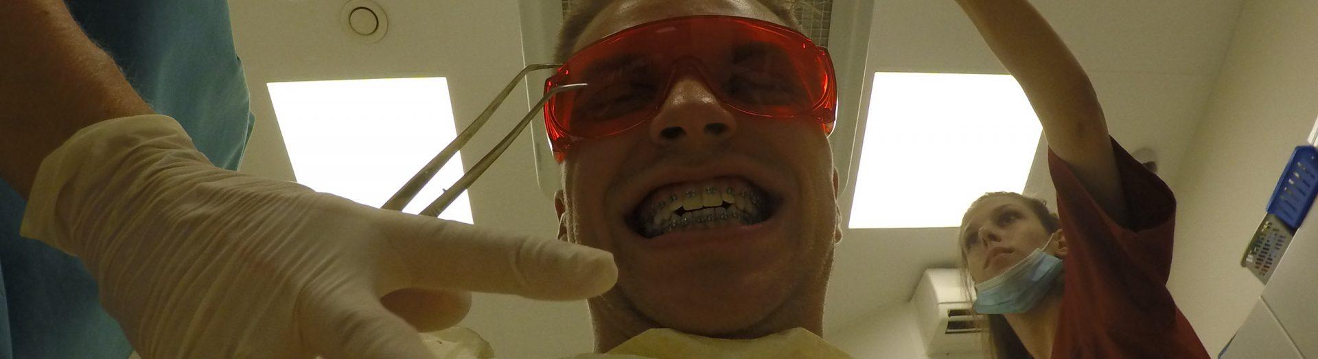 po założeniu aparatu ortodontycznego zadrutowani