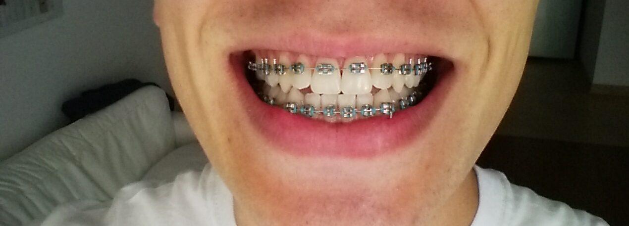 Jak wygląda zakładanie aparatu ortodontycznego