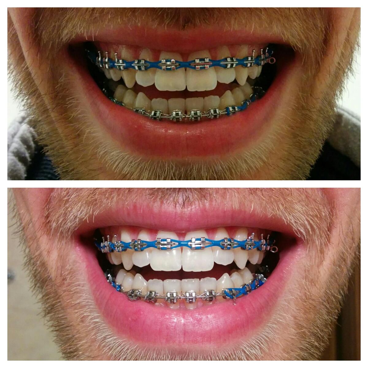 łańcuszek ortodontyczny przed i po wizycie zadrutowani