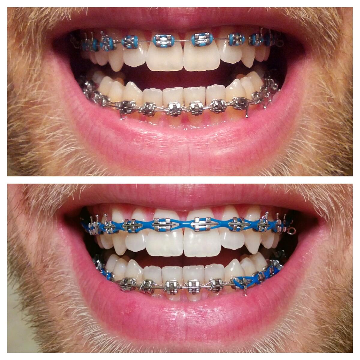 zdjęcie łańcuszka ortodontycznego przed i po wizycie