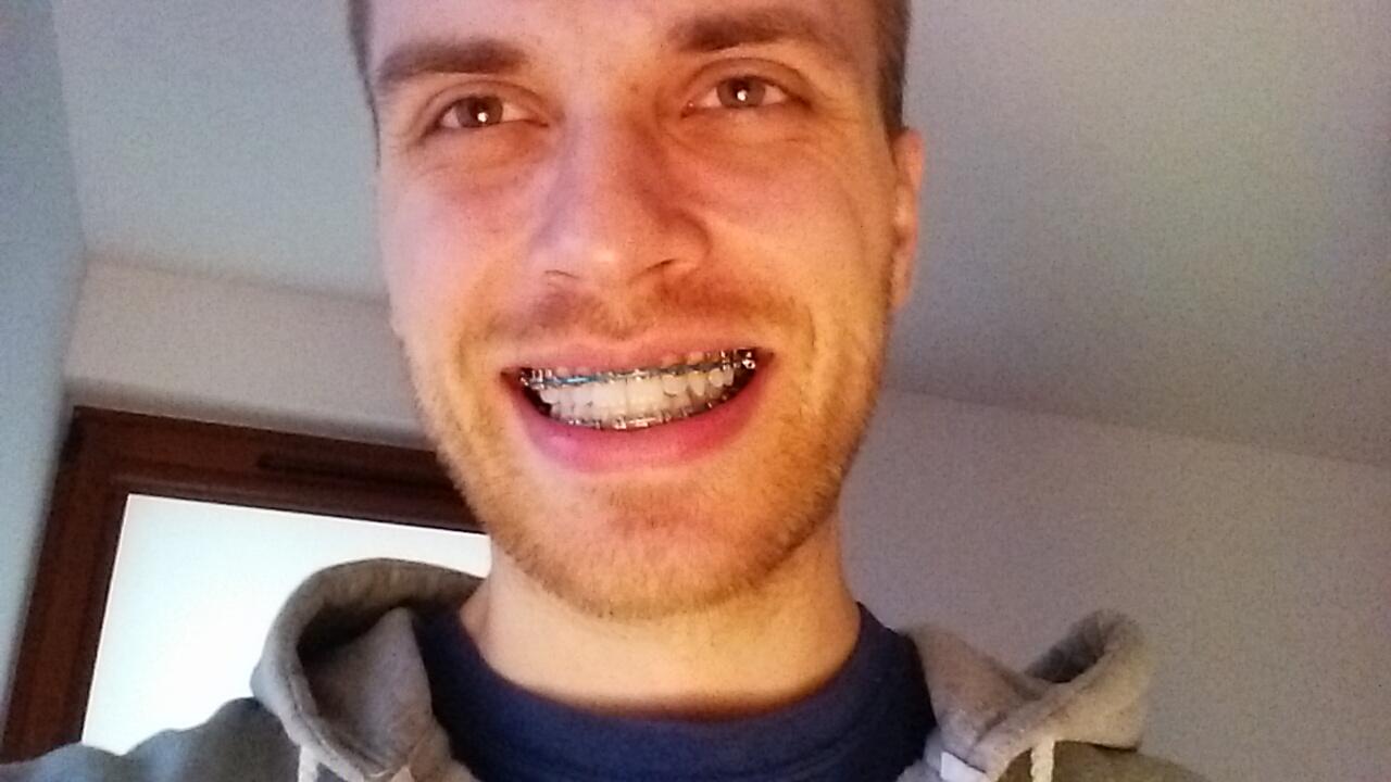 Efekty leczenia ortodontycznego po trzech miesiącach