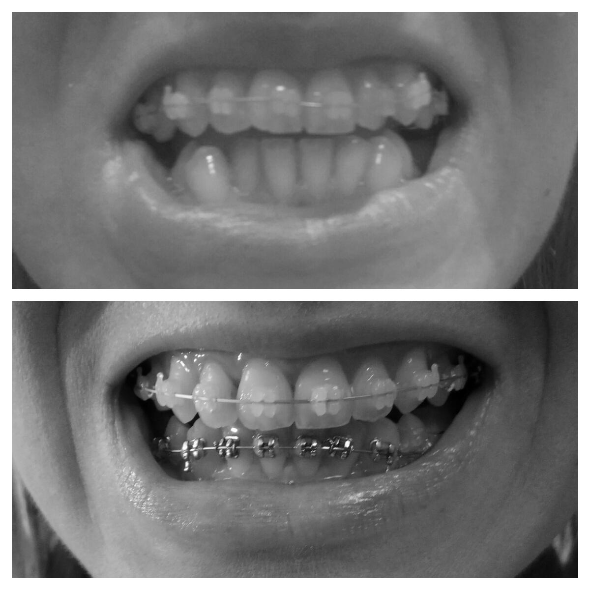 efekty leczenia ortodontycznego po 8 miesiącach dół zadrutowani