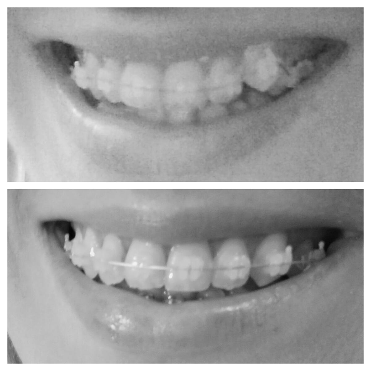 efekty leczenia ortodontycznego po 8 miesiącach profil zadrutowani