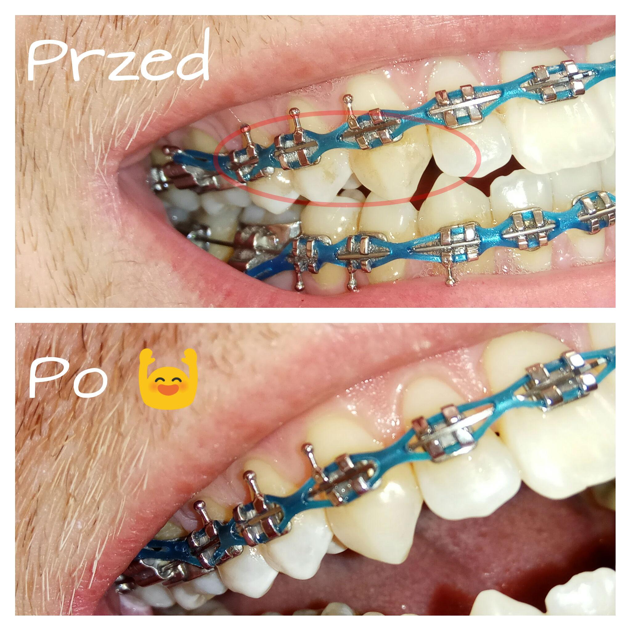 aparat ortodontyczny i osad, przed i po - zadrutowani