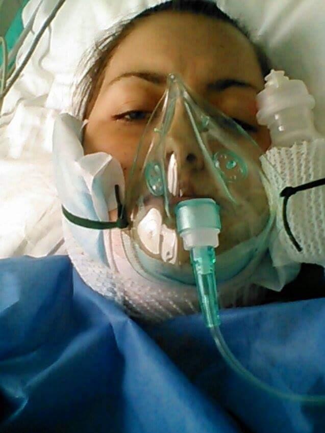 Hania po operacji ortognatycznej
