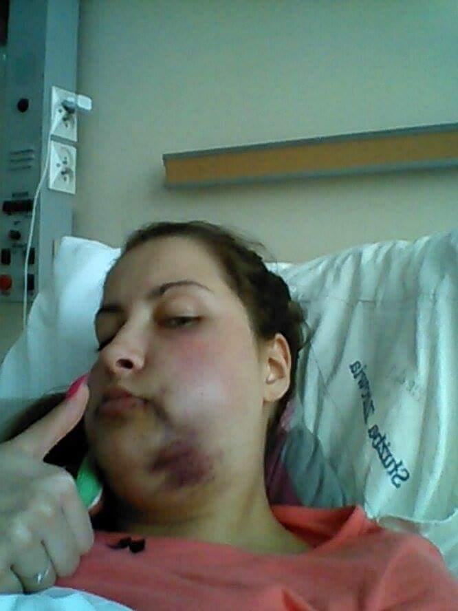 Hania po operacji, opuchlizna i siniak na szyji