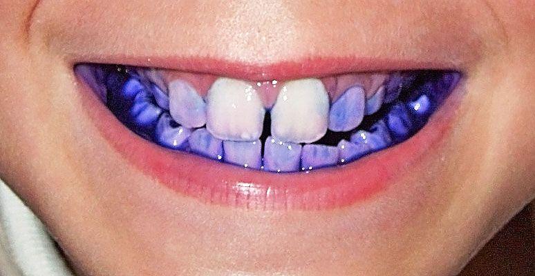 Wybarwianie płytki nazębnej a aparat ortodontyczny