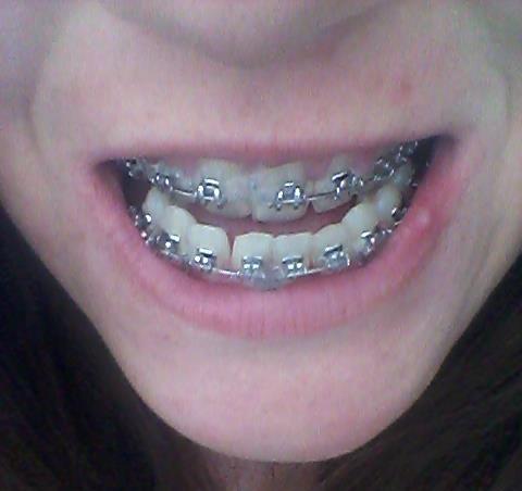 Karolina w aparacie ortodontycznym.