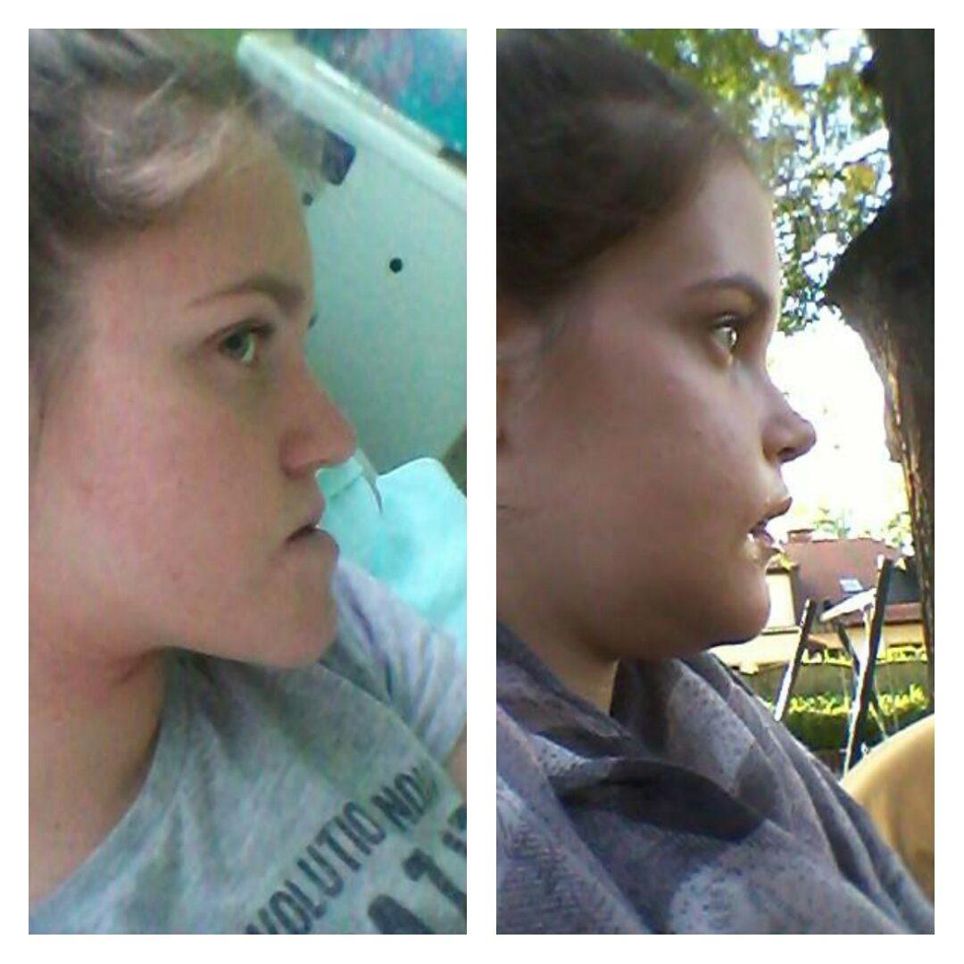 Porównanie profilu Karoliny przed i po operacji typu bimax.