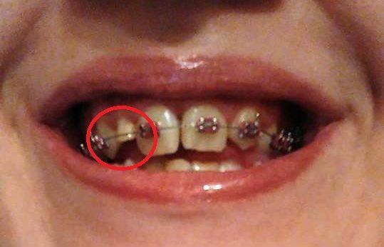 Ząb mleczny u 24 letniej Oli.