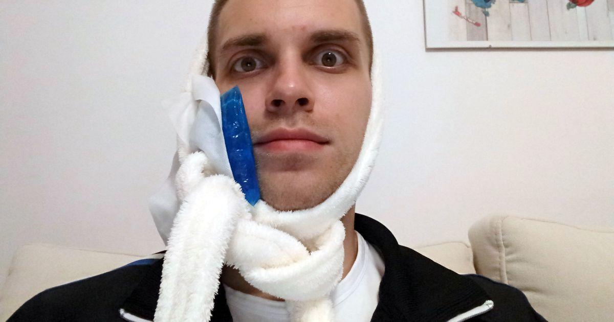 Żel chłodzący przy twarzy Michała