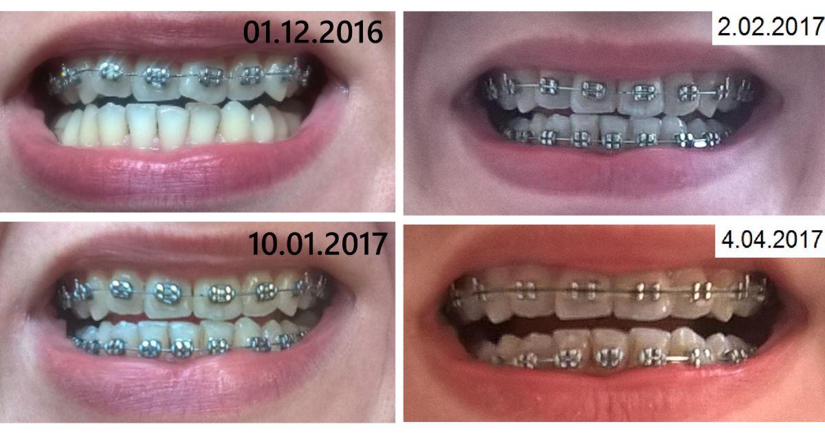 Efekty leczenia ortodontycznego aparatem stałym