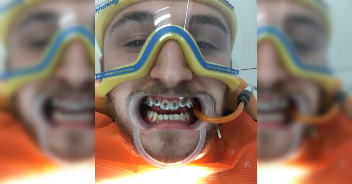 Aparat ortodontyczny – męskim okiem