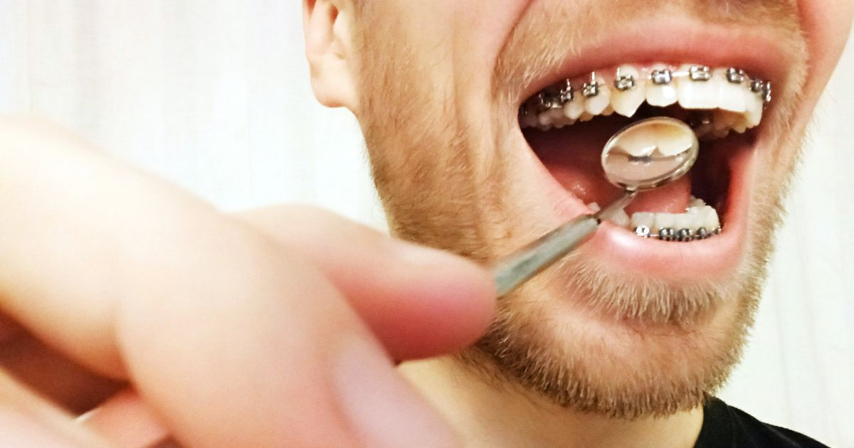 Skaling, piaskowanie i fluorowanie zębów podczas noszenia aparatu