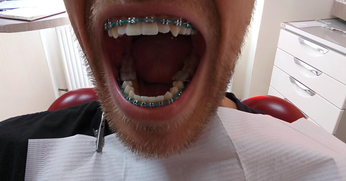 7 rzeczy, o które powinieneś zapytać ortodontę rozpoczynając leczenie cz. 1