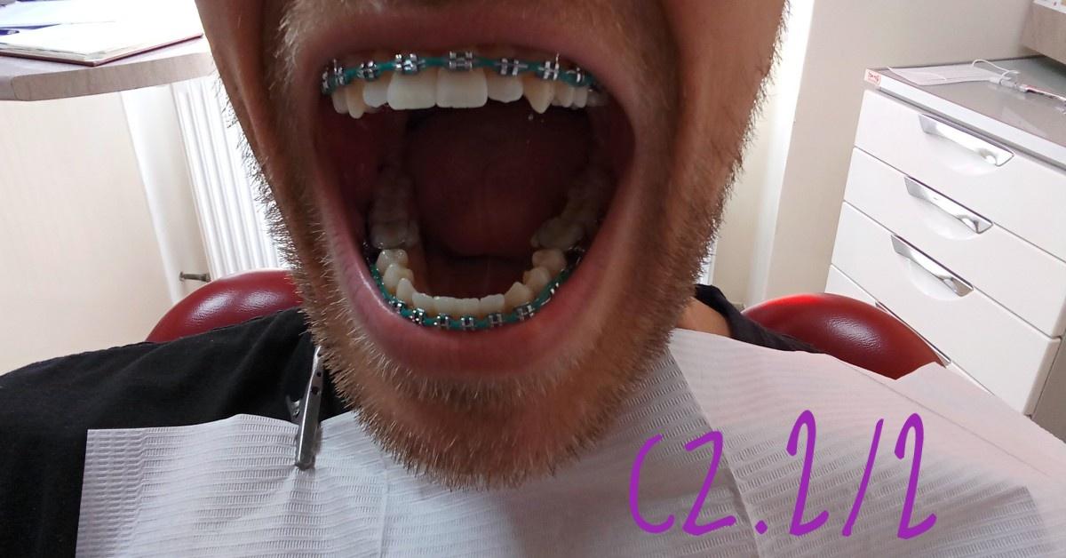 7 rzeczy, o które powinieneś zapytać ortodontę rozpoczynając leczenie cz. 2