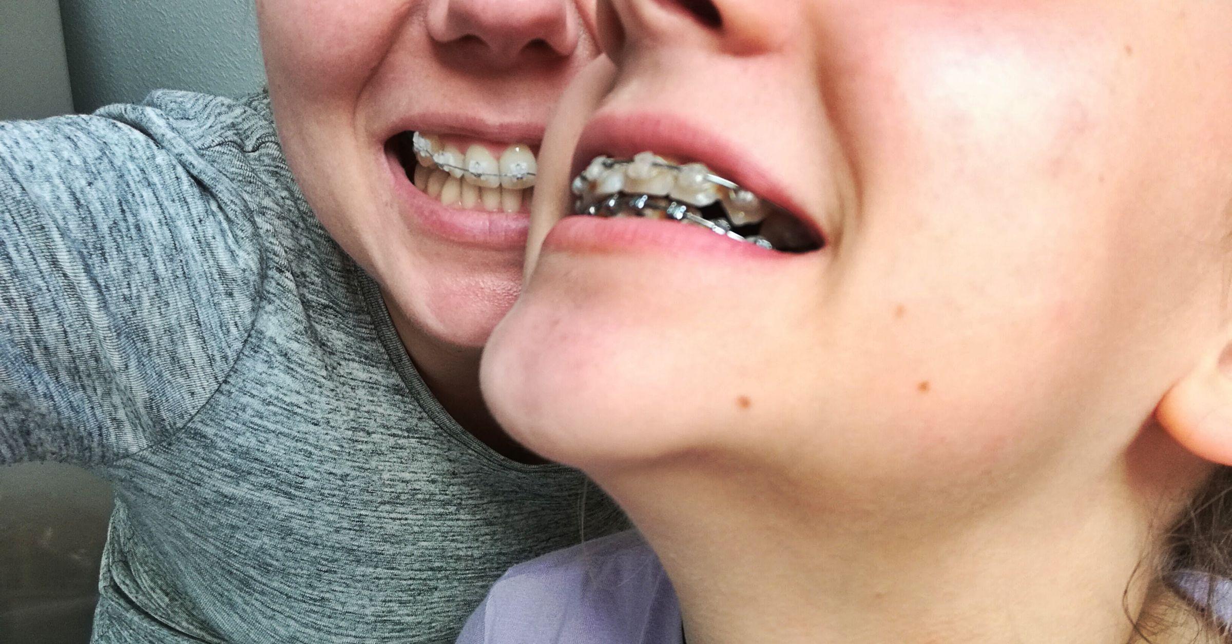 Leczenie ortodontyczne za granicą – Niemcy