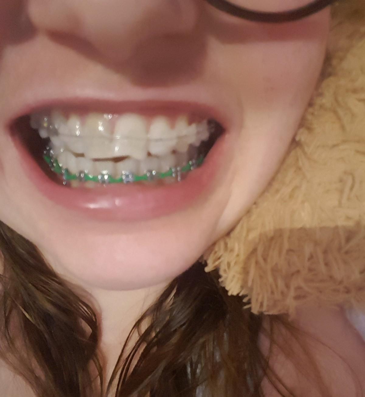 Po 7 miesiącach leczenia ortodontycznego